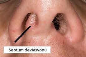 septum deviasyonu